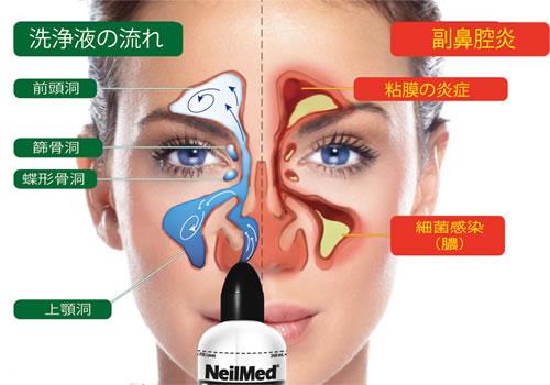 詰まり 片方 鼻